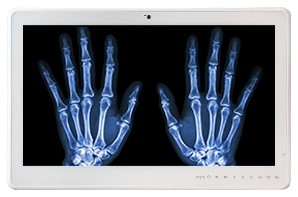 Teguar TM-5510-22 configured for DICOM imaging showing an x-ray of two hands